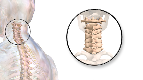 vertebral-subluxation-2tn2ns