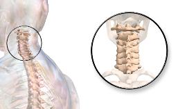 vertebral-subluxation-2tn2ns